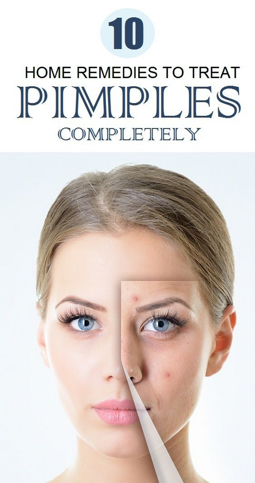 How to get rid of your acnes naturally at home