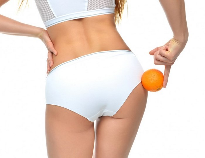 Cellulite Is Not Easy To Fight Here Are The 9 Tricks To Prevent It